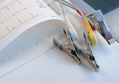 electrocardiogram or ekg